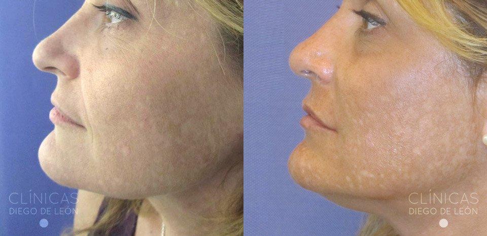 Surco Nasogeniano antes y después
