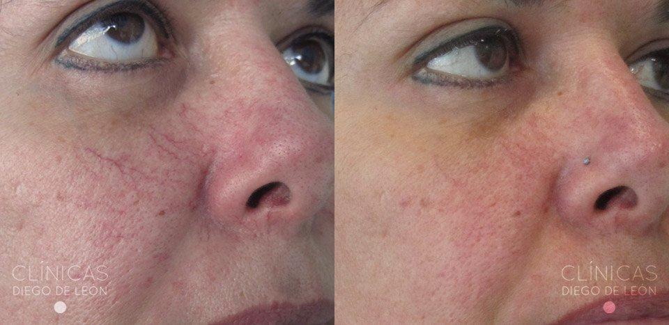 Arañas Vasculares en la cara