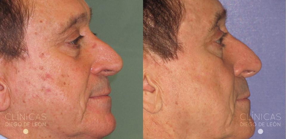Eliminar manchas de la cara con láser