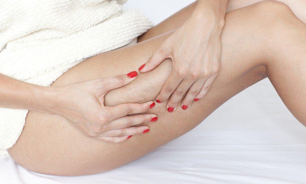 Celulitis después del parto