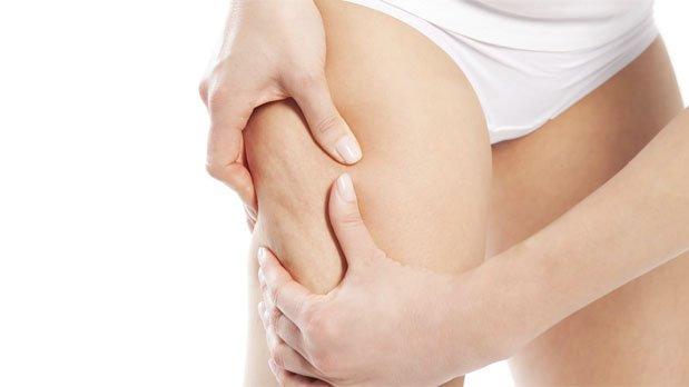 Eliminar la celulitis tras el embarazo