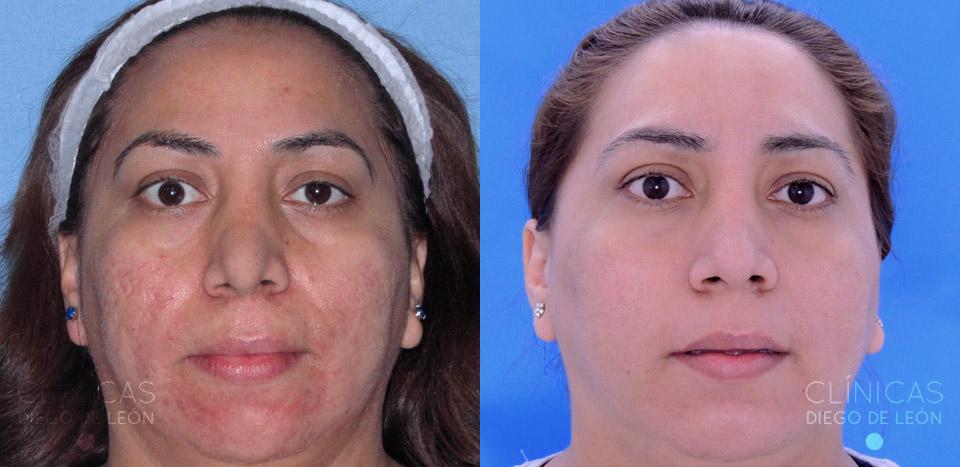 Eliminar marcas acné