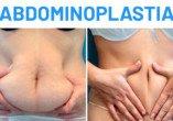 Antes y Después Abdominoplastia Dana