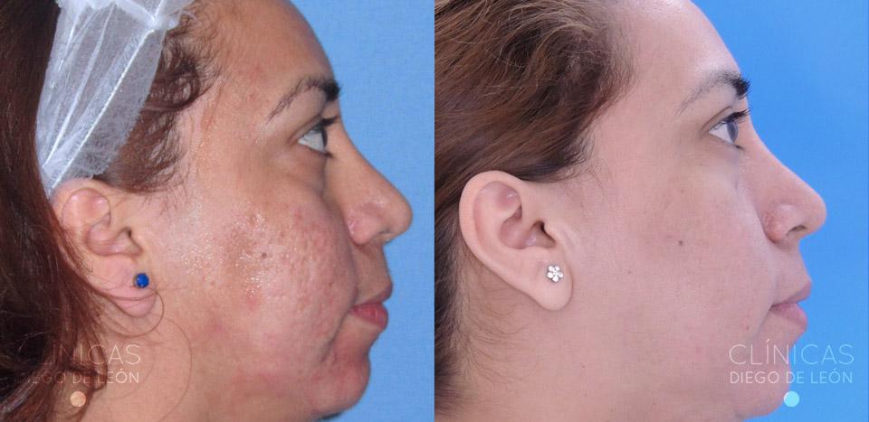 Quitar marcas acné