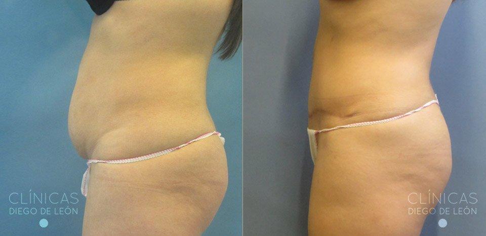 Resultado Real Abdominoplastia