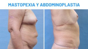 Antes y después mastopexia y abdominoplastia