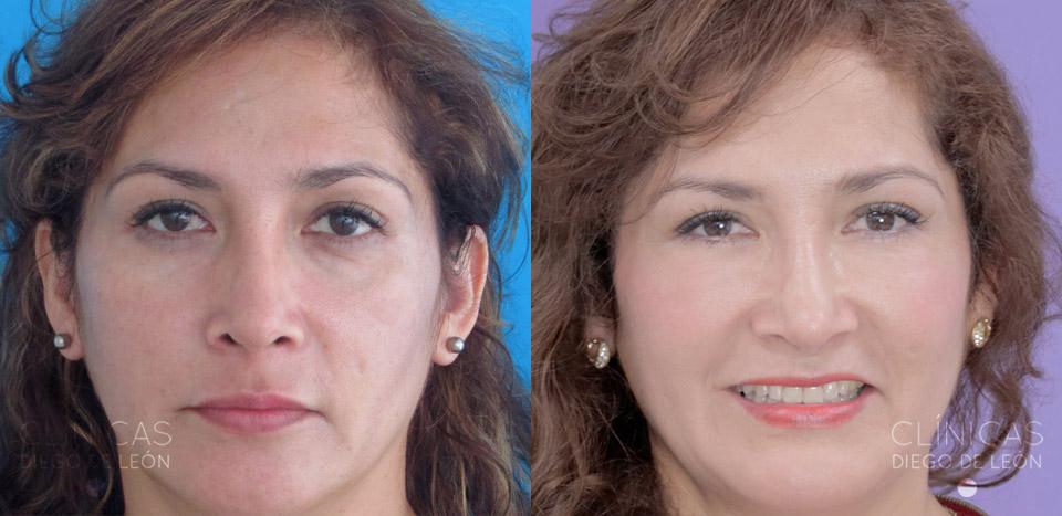 Antes y Desupués Tratamiento Facial