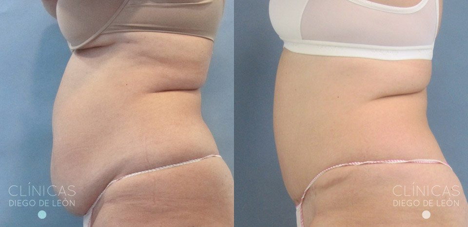 abdominoplastia antes y despues
