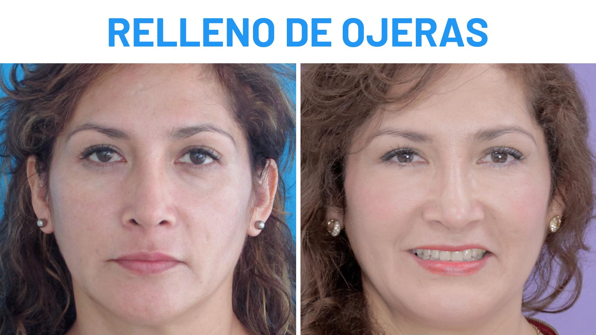 Eliminar ojeras antes y despues de adelgazar
