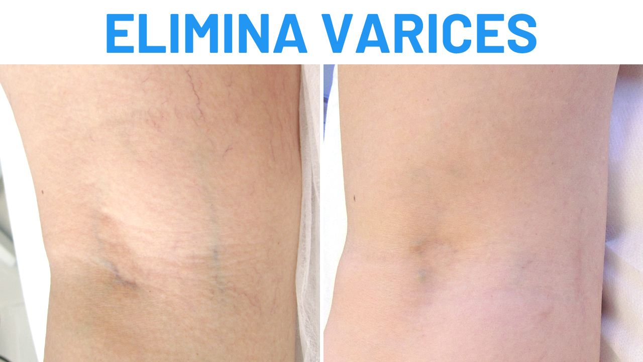 Eliminar varices con láser vascular
