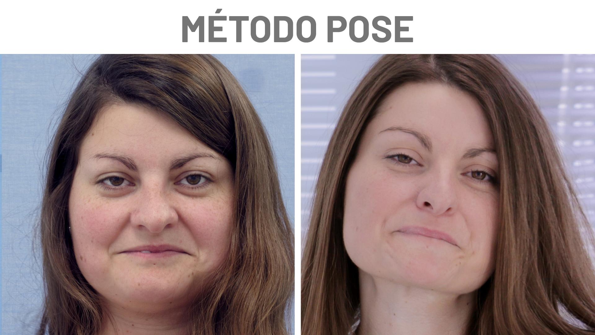 Antes y Después Helena - Método POSE