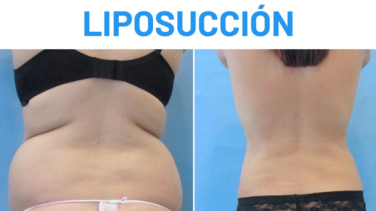 Liposucción abdomen y flanco Testimonio antes y después