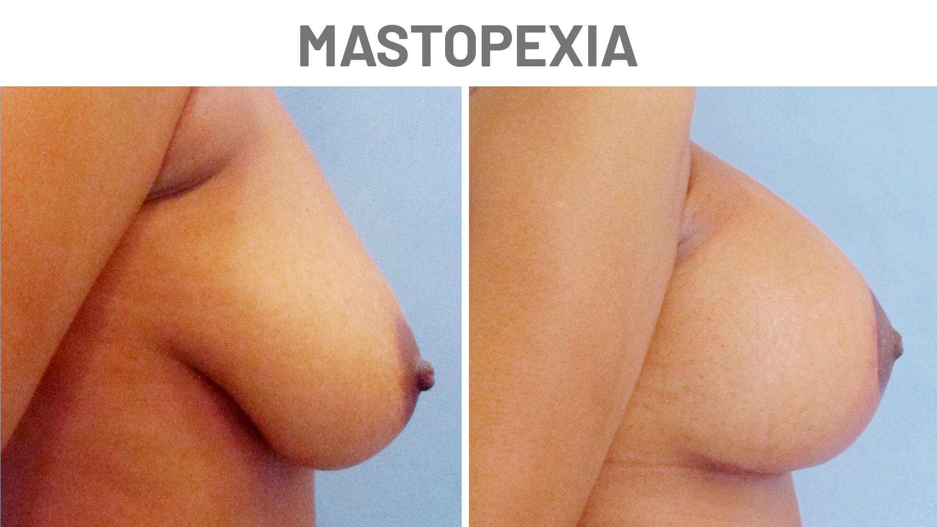 Antes y después Mastopexia - Clínicas Diego de León