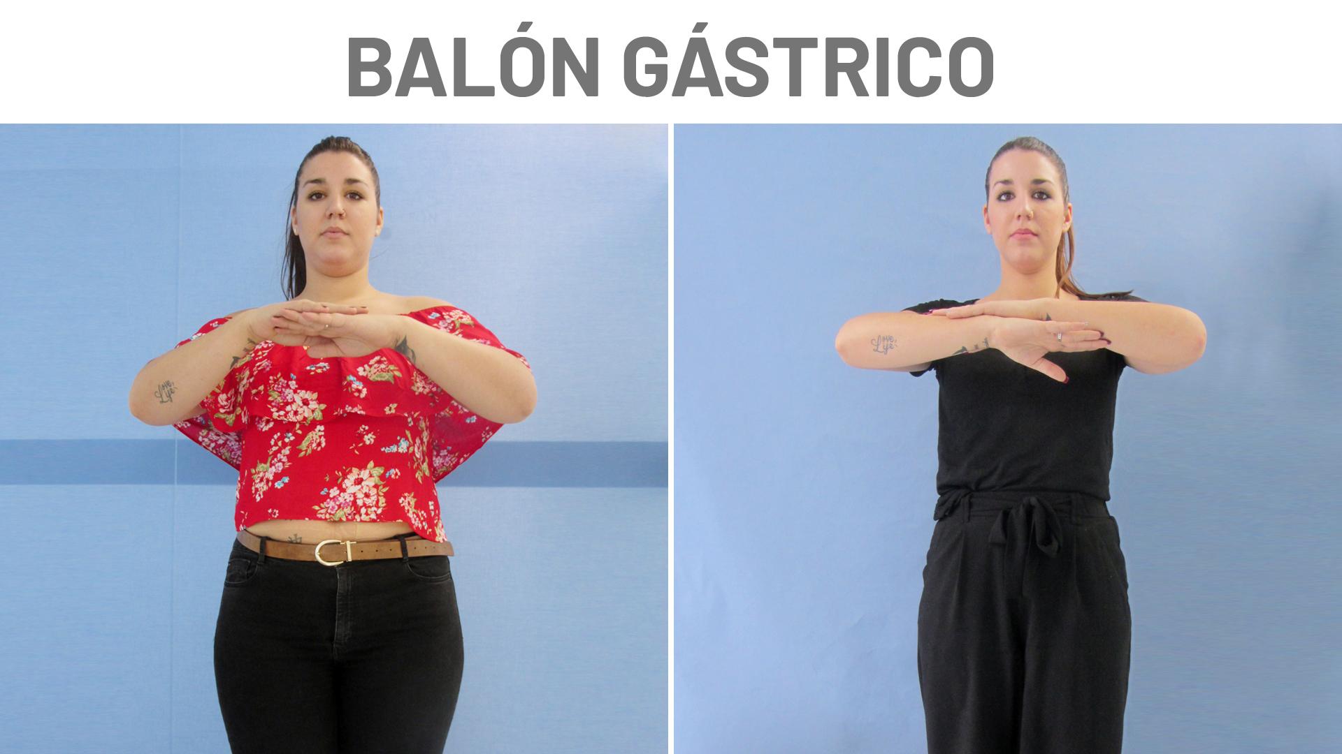 Antes y después del balón gástrico