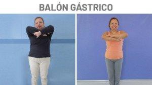 Antes y después Kery Balón Gástrico