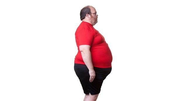Tratamientos para obesidad | Clínicas Diego de León