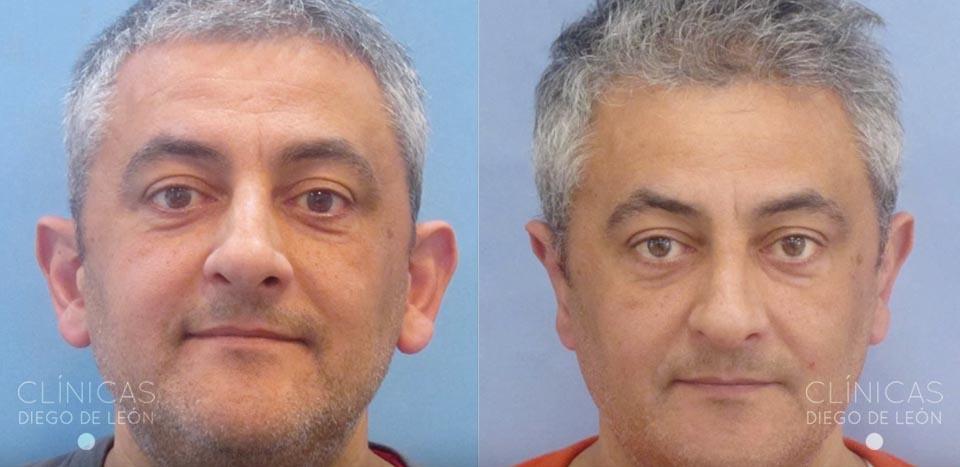 Antes y después operación orejas | Diego de León
