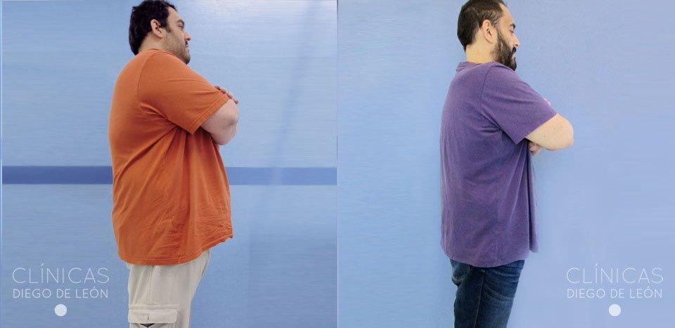 Tratamiento bypass 6 meses | Clínicas Diego de León