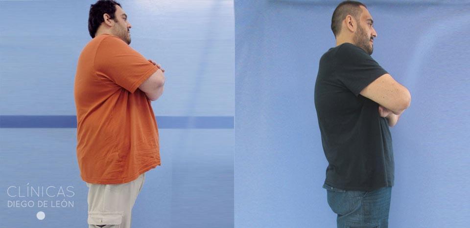 Antes y después Bypass gástrico | Clínicas Diego de León