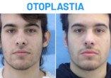Antes y Después Otoplastia