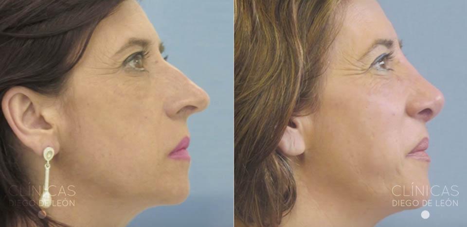 Cirugía de nariz antes y después | Clínicas Diego de León