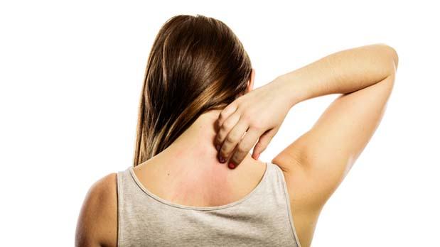 Alergias piel