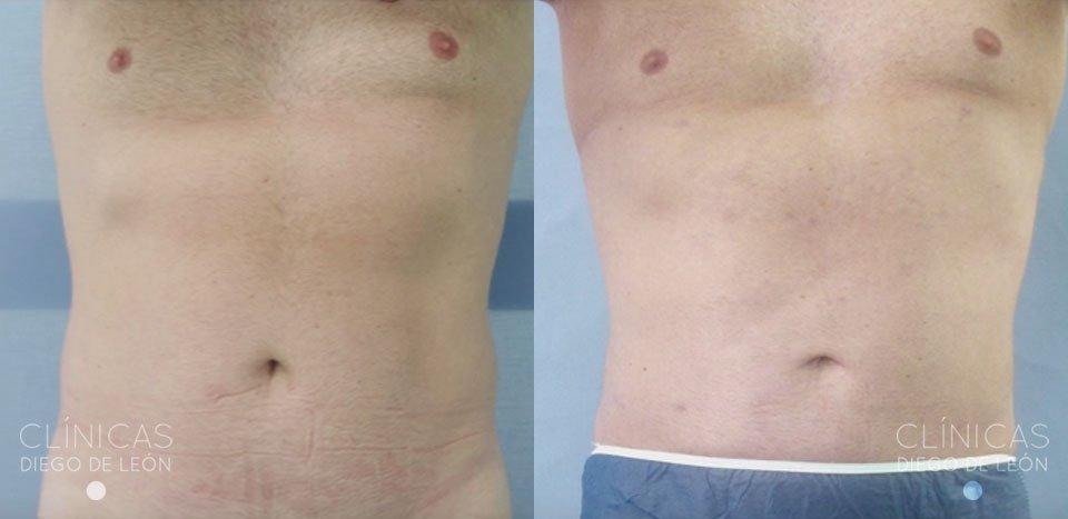 Antes y después abdominoplastia | Clínicas Diego de León