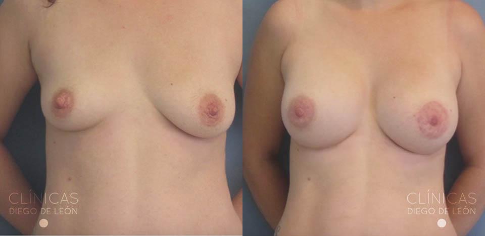 Aumento de senos antes y después | Clínicas Diego de León