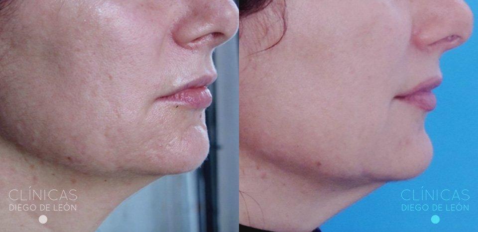 Antes y después eliminar acné | Clínicas Diego de León