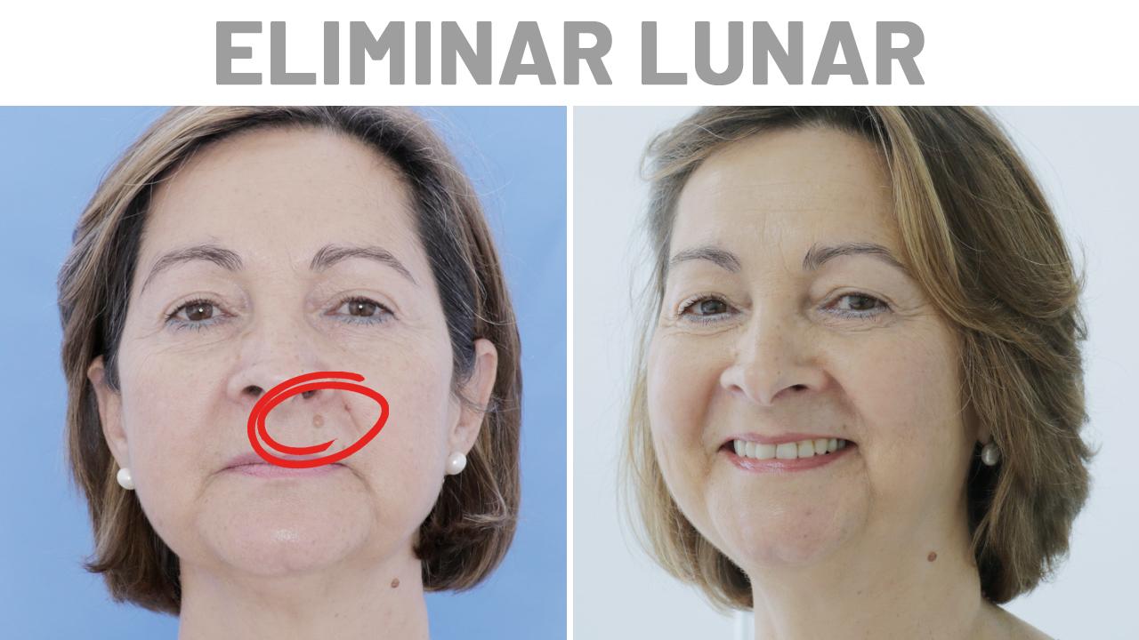 Antes y Después Lunares con Araceli