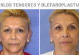 Antes y Después Blefaroplastia e Hilos tensores - Clínicas Diego de León