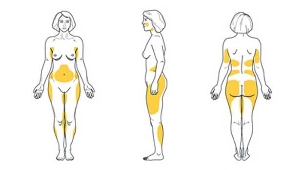 grasa corporal mujer