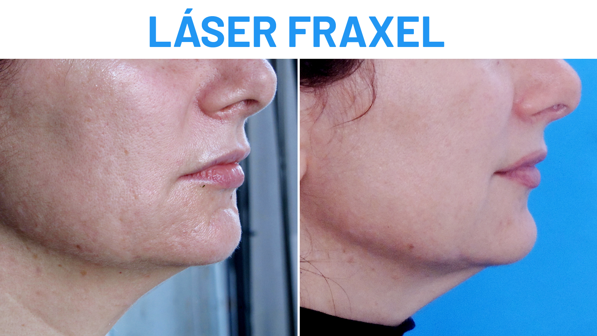 Antes y Después Láser Fraxel Dual