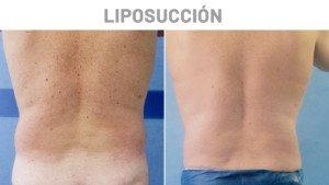 Antes y Después Liposucción Jose