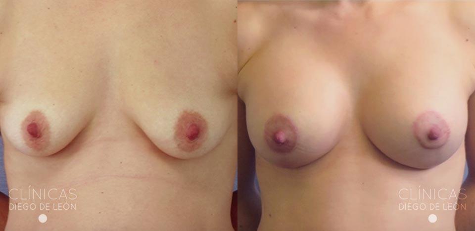 Resultados Mastopexia y Abdominoplastia