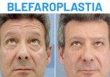 Antes y Después Blefaroplastia Ricardo