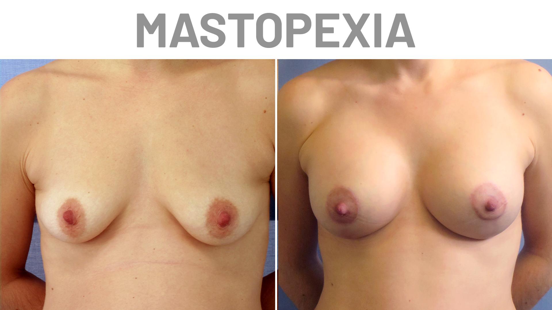 Antes y Después Vanessa - Mastopexia y Abdominoplastia