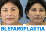 Antes y Después de Blefaroplastia Superior