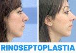 Antes y Después Rinoseptoplastia