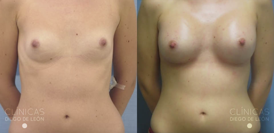 Antes y después aumento de pecho | Clínicas Diego de León