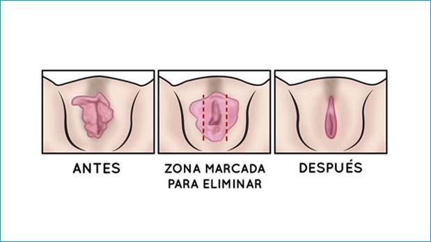 cirugia labios genitales