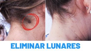 Antes y Después Eliminación de Lunares