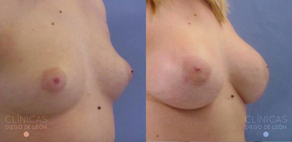 Mamoplastia de aumento antes y después | Clínicas Diego de León