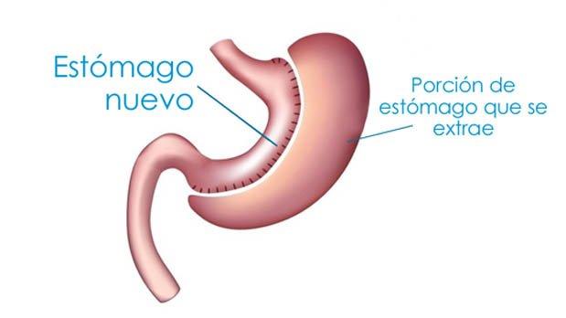 reduccion de estomago manga gastrica