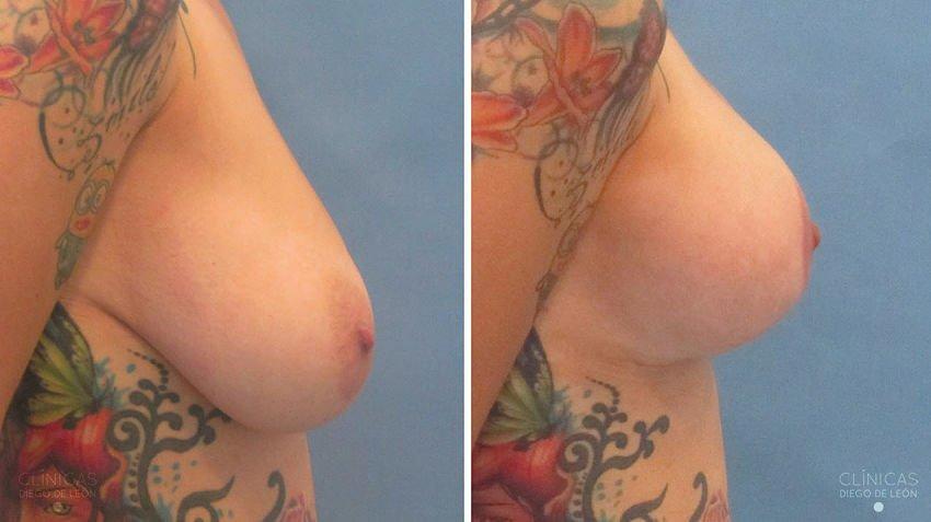 mastopexia con implantes resultados