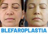 Antes y Después Blefaroplastia Completa