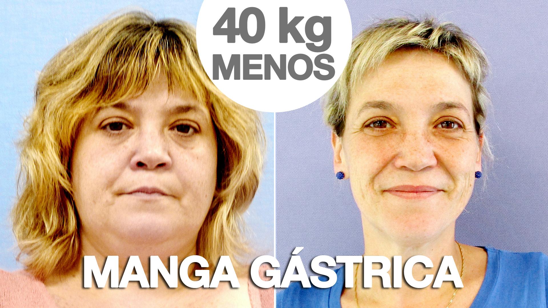 Reducci 243 N De Est 243 Mago Con Manga G 225 Strica Testimonio De Sonia
