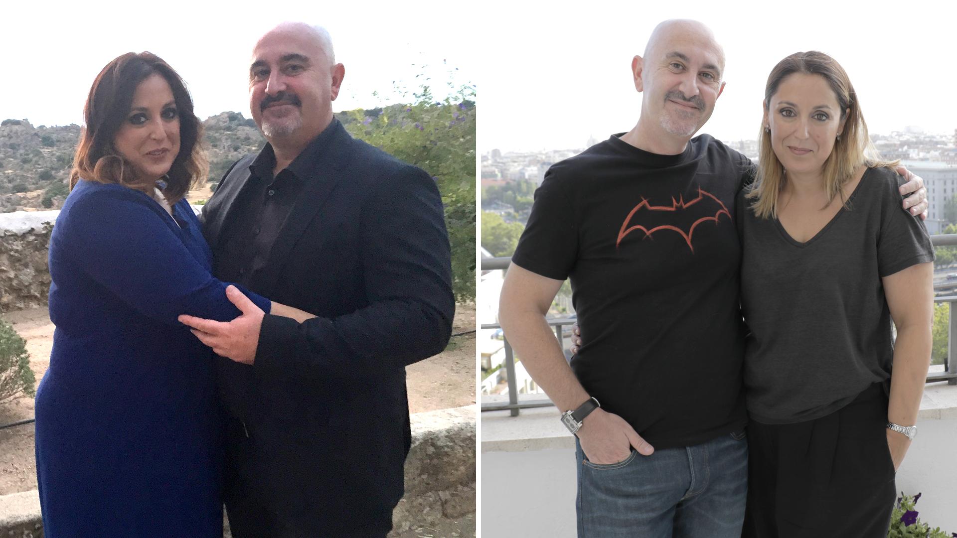 Antes y después Manga gástrica | Clínicas Diego de León