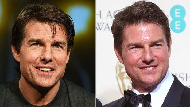 La imagen de Tom Cruiste antes y después de realizarse su tratamiento.