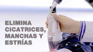 Eliminar cicatrices con laser Fraxel | Clínicas Diego de León